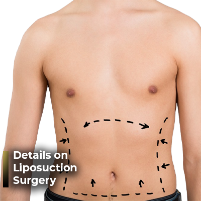 Details on Liposuction Surgery Ahmet Dilber