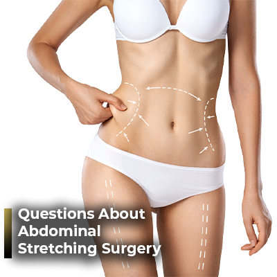 Questions About Abdominal Strecthing Surgery Ahmet Dilber